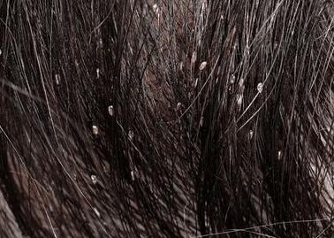 piojos en el pelo de un niño