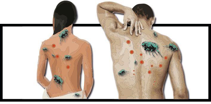 Detecta picaduras de pulgas en humanos facilmente